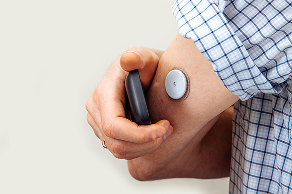 continuous-blood-glucose-monitor